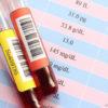 血液検査で糸球体ろ過量(eGFR)が低い!原因と改善方法は?