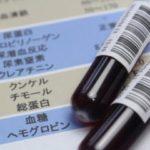 血液検査で血清クレアチニン値が基準値より高い原因とは?