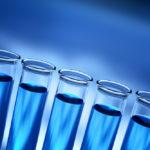 高いと危険?尿中クレアチニン濃度の基準値・正常値は何mg/dl?